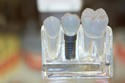 Using Dental Implants To Replace Teeth